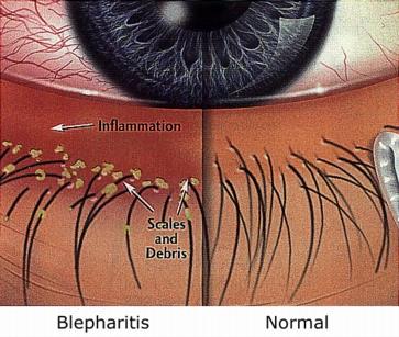 Глазной клещ лечение